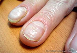 Distrofia ungueal