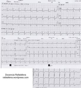 Electrocardiograma a la llegada del paciente (Clic para ampliar)