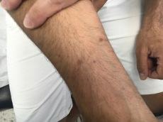 Lesiones hiperpigmentadas tras tto corticoideo